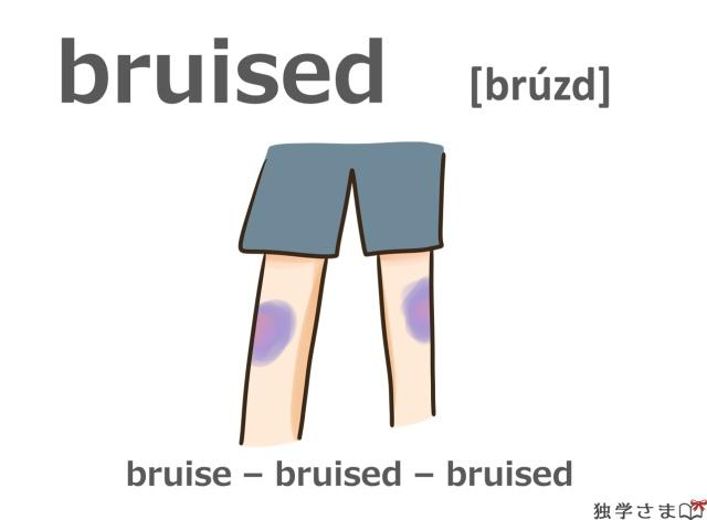 英単語『bruised(bruise)』イラスト