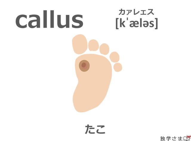英単語『callus』イラスト・意味・カタカナ