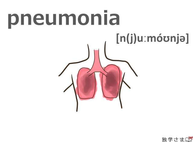 英単語『pneumonia』イラスト