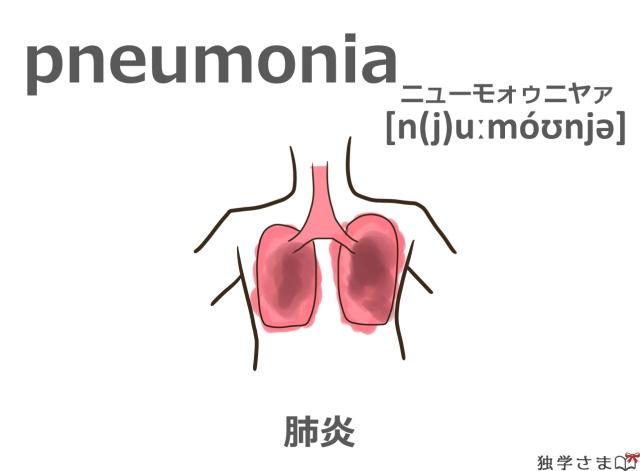英単語『pneumonia』イラスト・意味・カタカナ