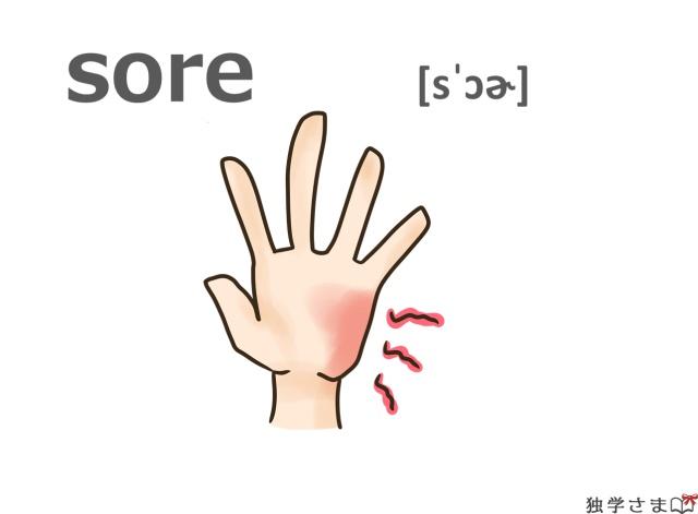 英単語『sore』イラスト