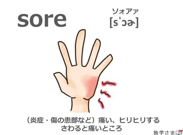 英単語『sore』イラスト・意味・カタカナ