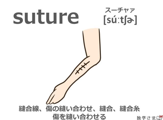 英単語『suture』イラスト・意味・カタカナ
